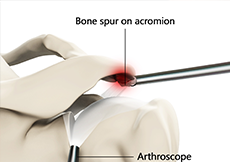 AC Joint Excision